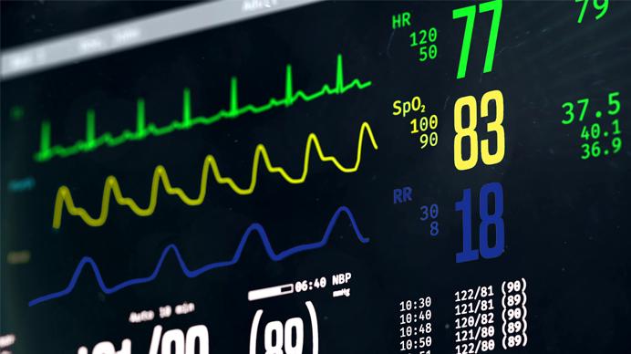 A Sociedade Brasileira de Cardiologia diz que 40 pessoas morrem de doença cardíaca a cada hora